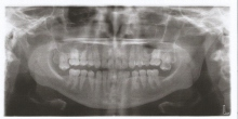 teeth scan